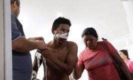 CIDH dictó medidas cautelares a pemones venezolanos