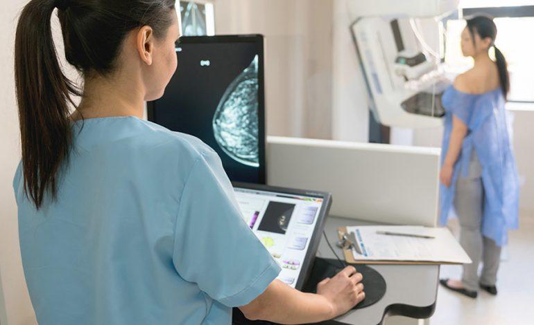 Las mamografías, tan inalcanzables por sus costos
